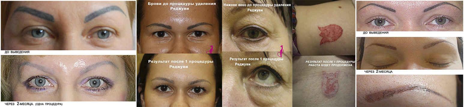 Безлазерное удаление перманентного макияжа