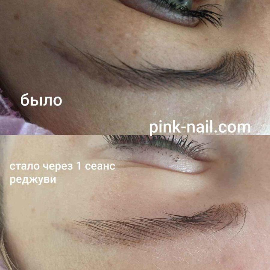 Удаление перманентного макияжа Минск Розовая пантера