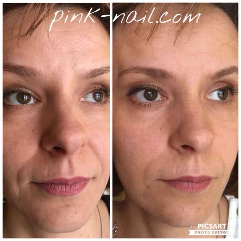 Буккальный массаж в студии Розовая пантера: до и после
